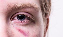 Nakaz oraz zakaz, czyli o zmianach w obszarze przemocy w rodzinie